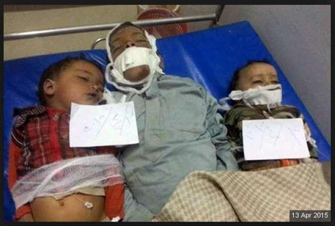 کشتار در یمن و غزه؛ قاتل یکی است