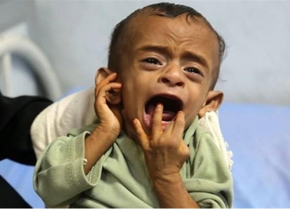 اوضاع فاجعه بار یمن به روایت صندوق نجات کودکان