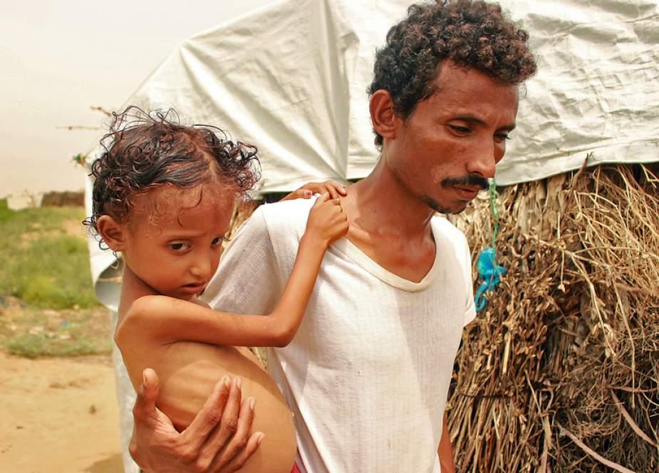'Yaman Kelaparan:' PBB Mengeluarkan Peringatan Serius
