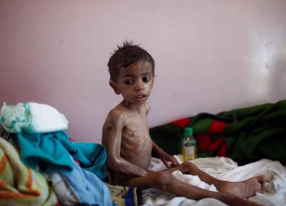 Salah satu anak Yaman penderita malnutrisi (PressTV).