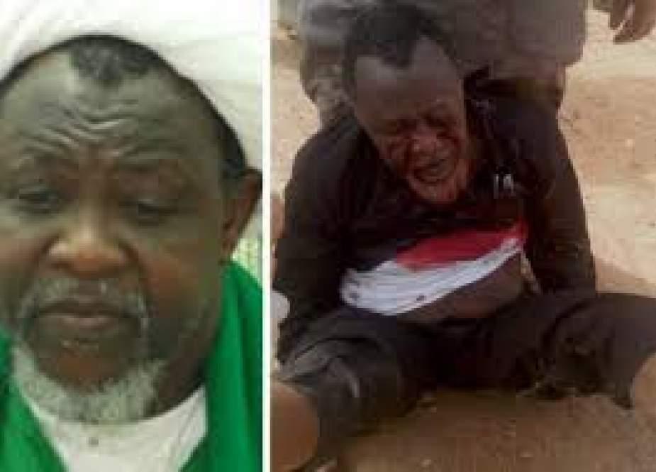 دولت نیجریه می خواهد شیخ زکزاکی را در زندان بکشد یا قبل از آزادی اش جنبش اسلامی را از بین ببرد