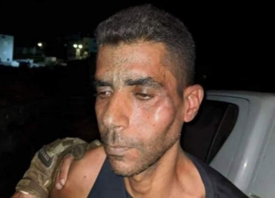 کرانه باختری ملتهب و آماده قیام/ زکریا الزبیدی به کما رفت