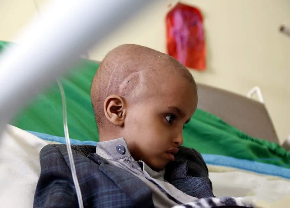 UNICEF Yəməndəki uşaqların ölümünü gündəmə gətirdi